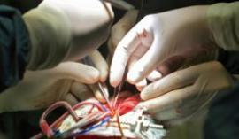 Медики восстановили работу сердца, не бившегося 80 минут